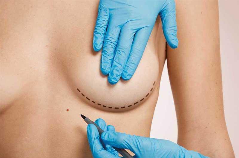 О пластической хирургии