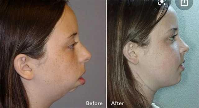 Пластическая хирургия поможет изменить внешность