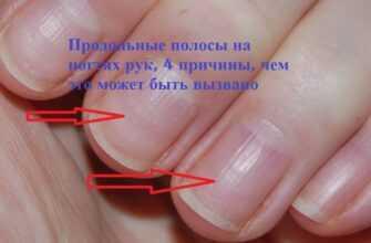 Продольные полосы на ногтях рук, 4 причины, чем это может быть вызвано