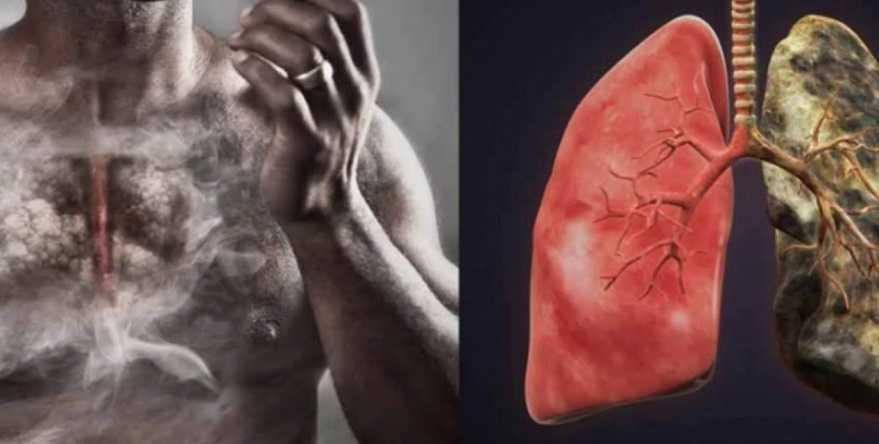 Курение вредит легким. Еда, которую надо есть для чистки легких