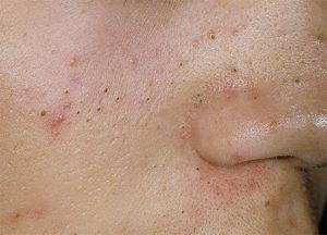 Черные точки портят идеальную кожу лица