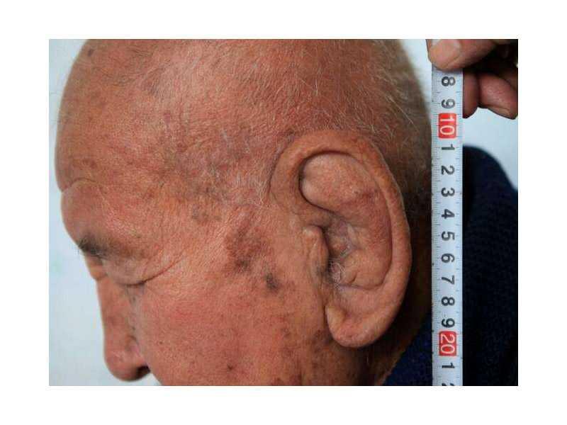 Большие уши спасли ему жизнь